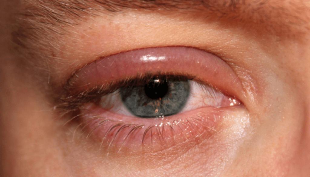 eyelid-hygiene-blog