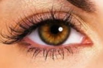 causes-of-red-eye-blog
