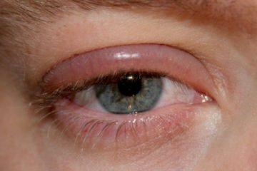 eyelash-extensions-and-blepharitis-blog